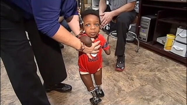 VIDEO: The 18-month-old was born without fully-developed legs and arms due to a genetic defect.