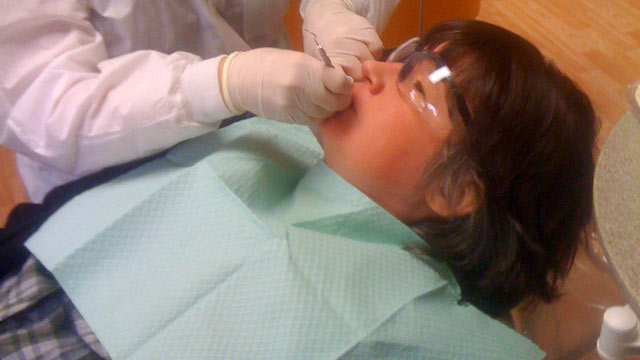 PHOTO: Tina Lumbley, 40, gets a filling at We Care dental clinic for people with disabilities.
