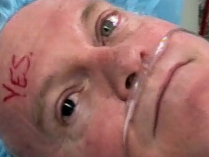 Video: Surgery corrects mans iris color.