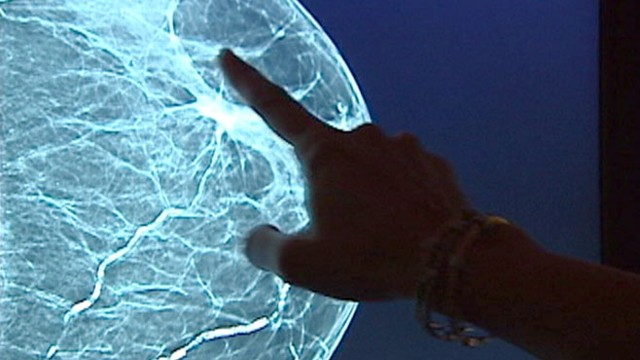 VIDEO: Find out how a new tool will allow doctors to detect cancer more accurately.