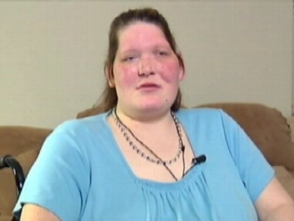 VIDEO: A California doctor says he might be able to stop Tanya Anguss growth.