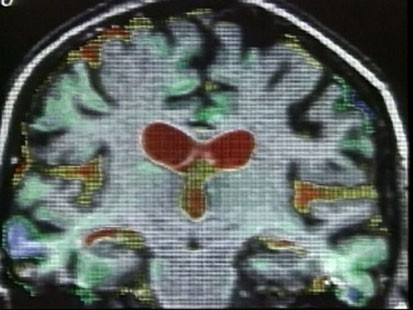VIDEO: An image of a brain