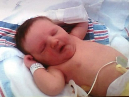 VIDEO: A newborn in Alabama has been born with paralyzed vocal chords.