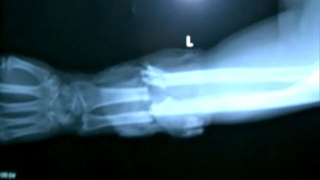 VIDEO: Texas Mans Severed Arm Reattached