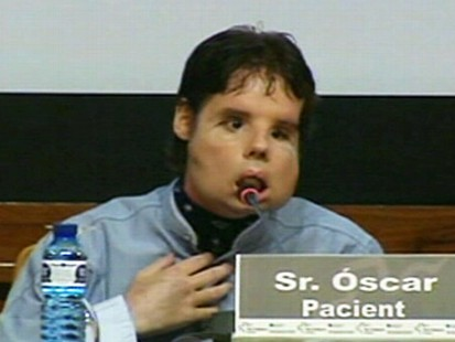 VIDEO: Spanish man, 31, undergoes the worlds first full-face transplant.