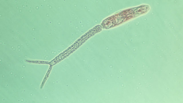 PHOTO: A schistosoma mansoni, causing schistosomiasis in man, is seen in this undated photo.