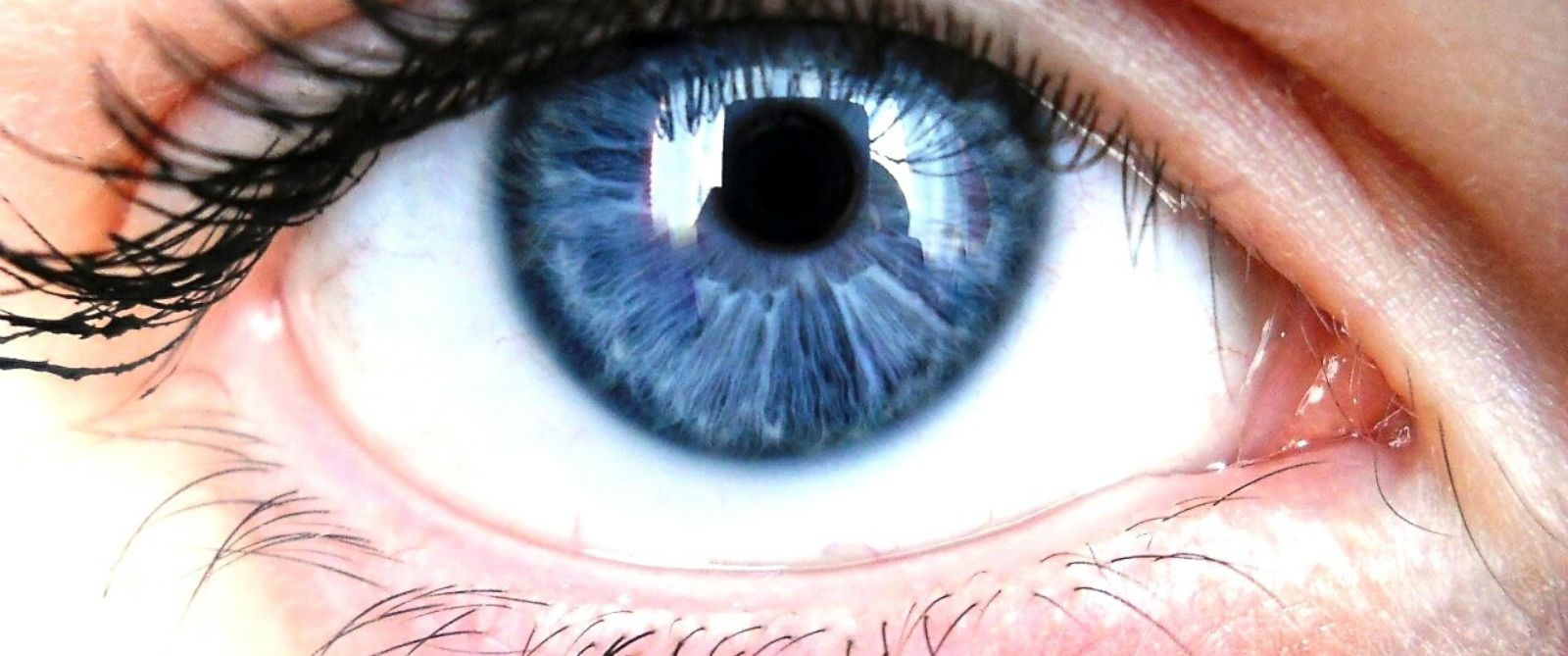 Study found relation between blue eyes and increased risk of alcoholism.