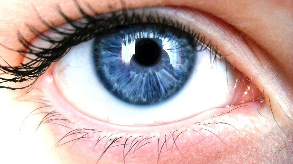 Blue Eyes: Is Everyone With Blue Eyes Related?