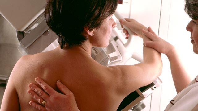PHOTO: Despite marked advances in breast cancer screening and treatment, a new study suggests that older women may not be benefiting from these advances as much as younger patients.