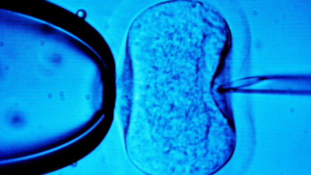 PHOTO: The medical procedure, in vitro fertilization, is seen under the microscope in this undated photograph.