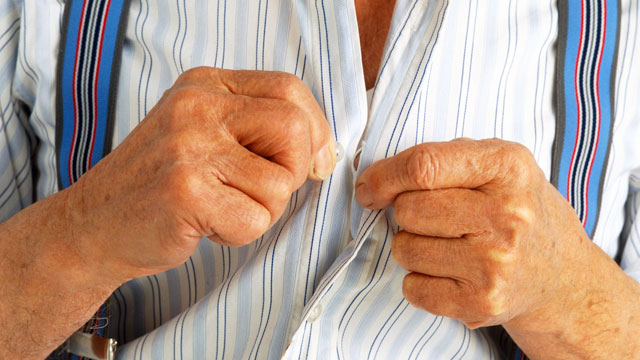 PHOTO: Elderly man in braces buttoning up his shirt.
