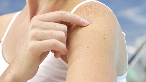 PHOTO: Here are some tips for healthy skin