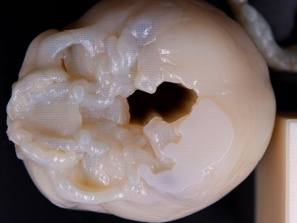 PHOTO: This 3D-printed objects helps simulate the real thing before doctors operate on their pint-sized patients.
