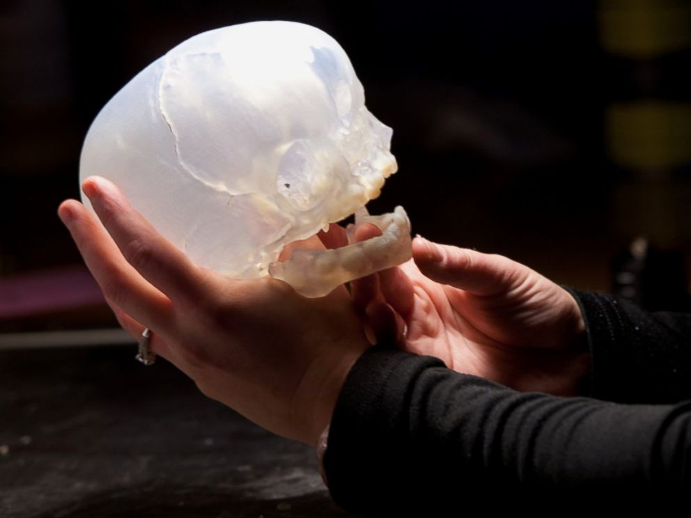PHOTO: This replica of a patients skull can be critical acts as a guide to help surgeons prepare for their surgeries.