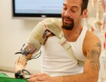 "PHOTO: Glen Lehman testing a ""bionic arm"" at the Rehabilitation Institute of Chicagos Center for Bionic Medicine."