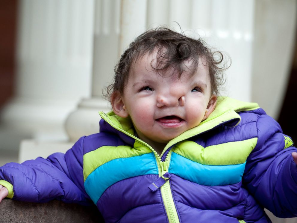 PHOTO: Violet was born with a rare condition that resulted in a widening of certain features in her face.