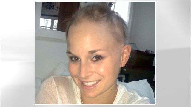 PHOTO: Georgia Van Cuylenburg was diagnosed with alopecia after her hair began falling out in clumps.
