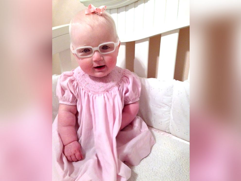 PHOTO: Louise McMorris had sight impairment due to albinism.
