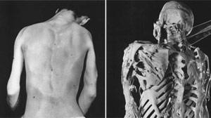 Girl Suffers Rare Disease That Turns Muscle Into Bone