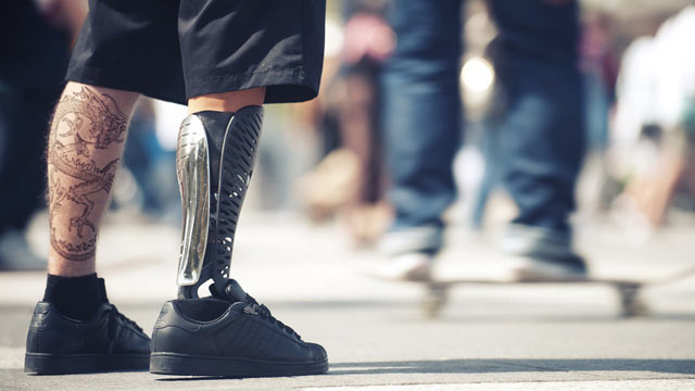 PHOTO: Prosthetic limbs get a personalized makeover.
