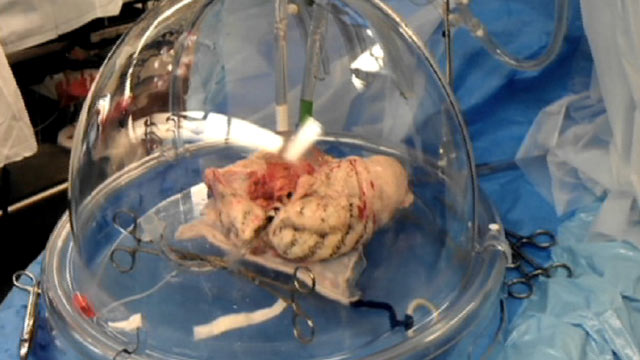 "PHOTO: Doctors keep a donated lung ""breathing"" until it can be transplanted into a recipient in need."