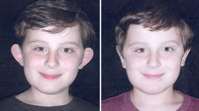 PHOTO Brian Donoghue, an 11-year-old from Long Island, N.Y., had plastic surgery to reduce the size of his ears.