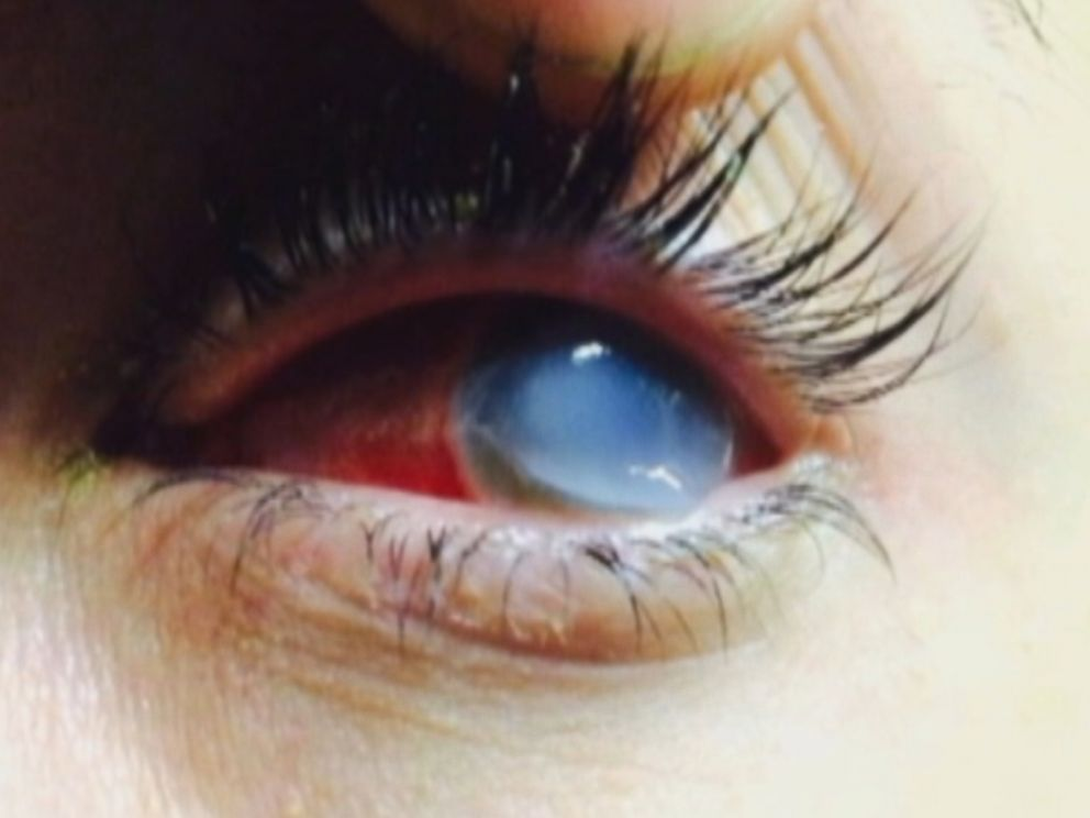 PHOTO: A suspected bacterial infection irreversibly damaged Brittany Williams' cornea and she now thinks she will have to have a cornea transplant to see again.