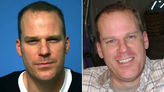 PHOTO: Marc, who chose not to share his last name, is shown before, left, and after botox.