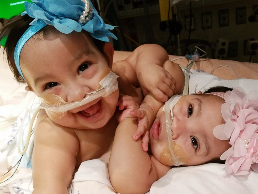 thesis statements about conjoined twins How to use twins in a sentence example sentences with the word twins twins example sentences.
