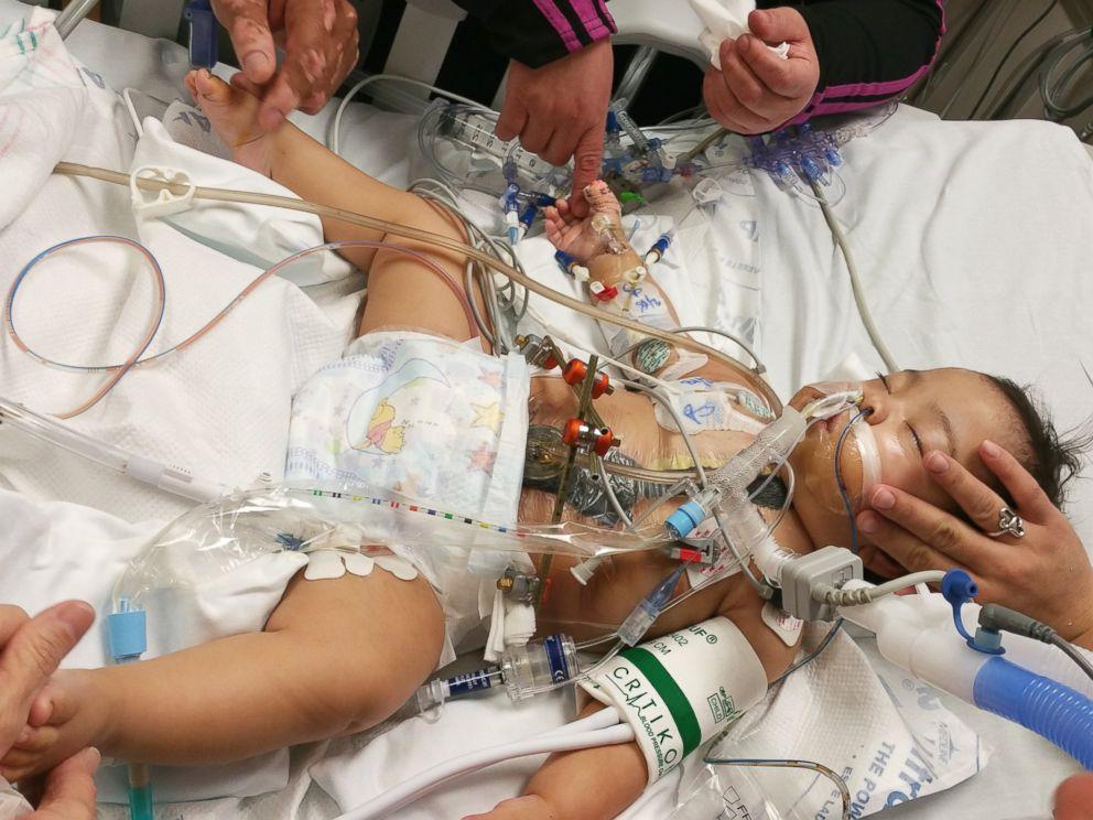 PHOTO: Knatalye Mata, shown here after separation surgery at Texas Childrens Hospital.