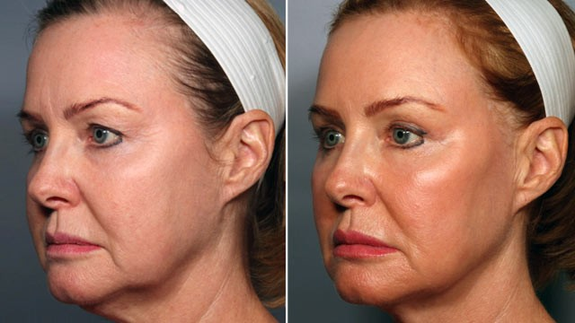 PHOTO: 55-year-old Debra Kerr underwent a stem cell makeover in which