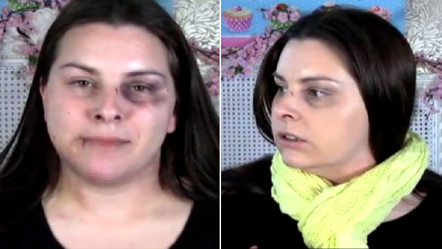 PHOTO: YouTube makeup artist Lauren Luke conceals cuts and bruises for domestic violence PSA.