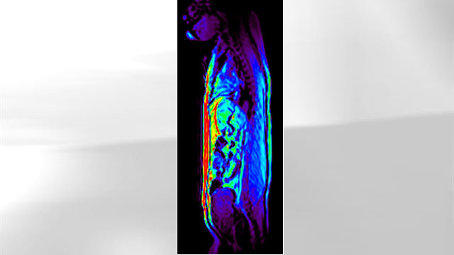 PHOTO: The drug Adipotide targets body fat (shown in red) and helped obese monkeys lose weight, according to a new study.