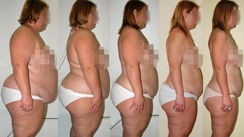 ht feeding tube diet jp 120507 wblog How Did This Woman Lose More Than 100 Pounds?