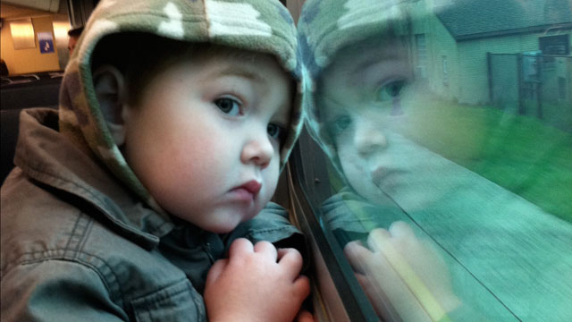 PHOTO: 2-year-old Finley Owens relies almost entirely on intravenous nutrition.