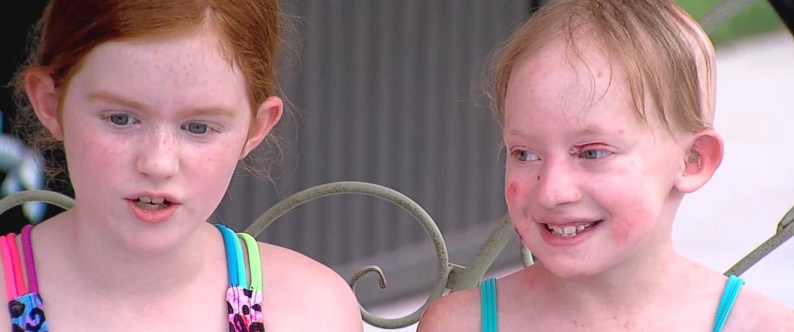PHOTO: Anne Marie suffers from a rare condition that causes her skin to easily blister.