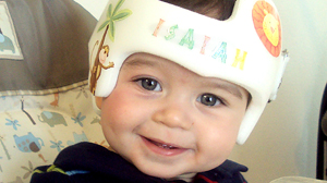 PHOTO Isaiah Regalado, 8 months, wears a Cranial Molding Helmet to correct a misshapen skull.