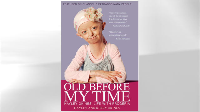 PHOTO: Old Before My Time: Hayley Okines life with progeria
