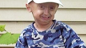 PHOTO Ory Barnett suffered from progeria, an extremely rare and fatal disease characterized by what resembles premature aging in children.