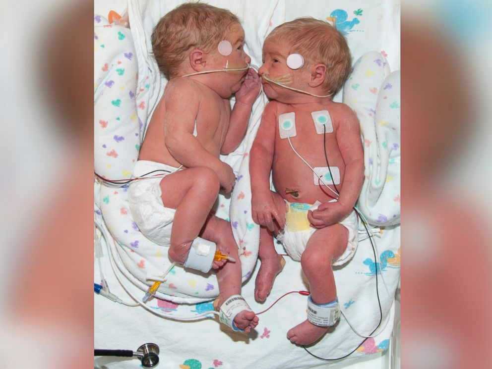 PHOTO: Peyton and Brooke born at Saint Lukes East Hospital in Lees Summit, Missouri.