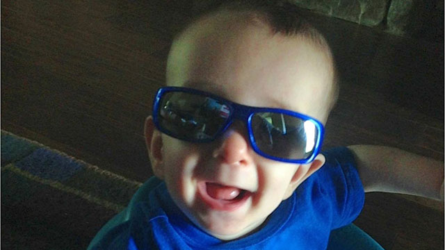 PHOTO: Six-month-old Ryan Burke had surgery to reshape his skull.