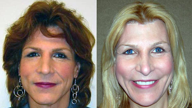 PHOTO: Sarah, 50, said facial feminization surgery made her look younger.