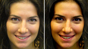 Photo: Study: Golden Glow Boosts Hotness Factor: A Tan Upped HotorNot.com Scores for Women