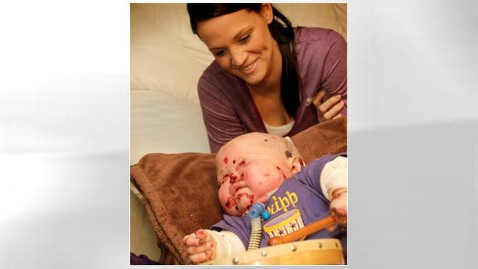 ht tripp tk 111214 wblog Readers Choice Hero: Mom Cares For Son With Disfiguring Disorder
