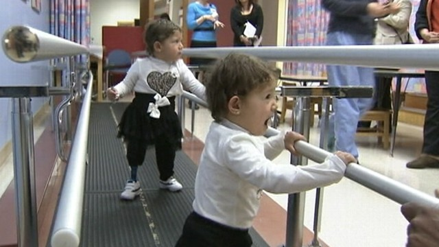 VIDEO: The 2-year-old girls born without functioning legs received care at a California hospital.