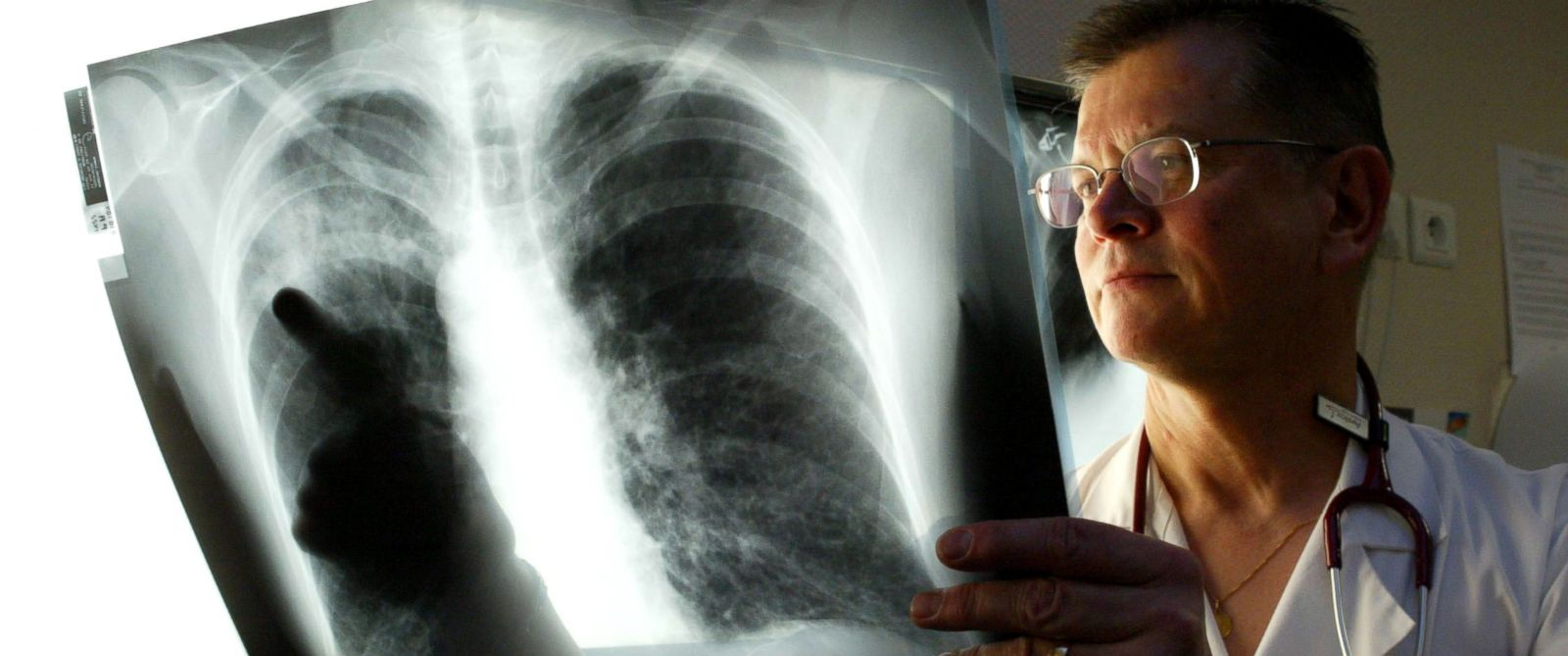 PHOTO: A French doctor looks at a patients x-ray at the Henin Beaumont hospital during a deadly outbreak of Legionnaires disease in northern France, Jan. 2, 2004.