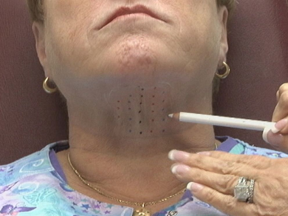 PHOTO: FDA approves a new drug injection that could remove the double-chin.
