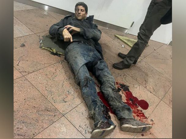 PHOTO: Brazilian basketball player Sebastien Bellin, who formerly played for the Belgian national basketball team, lies wounded on the floor of the Brussels Airport in Brussels, Belgium, after explosions ripped through the departure hall, March 22, 2016.