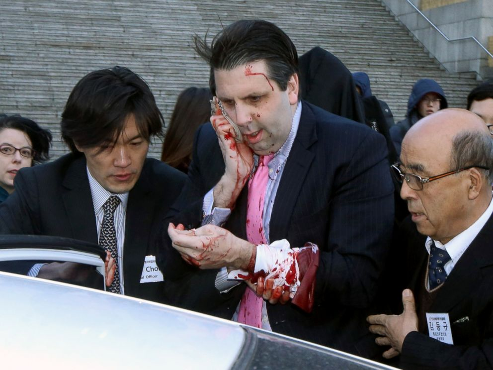 PHOTO: Injured U.S. Ambassador to South Korea Mark Lippert, center, gets into a car to leave for a hospital in Seoul, South Korea, March 5, 2015.