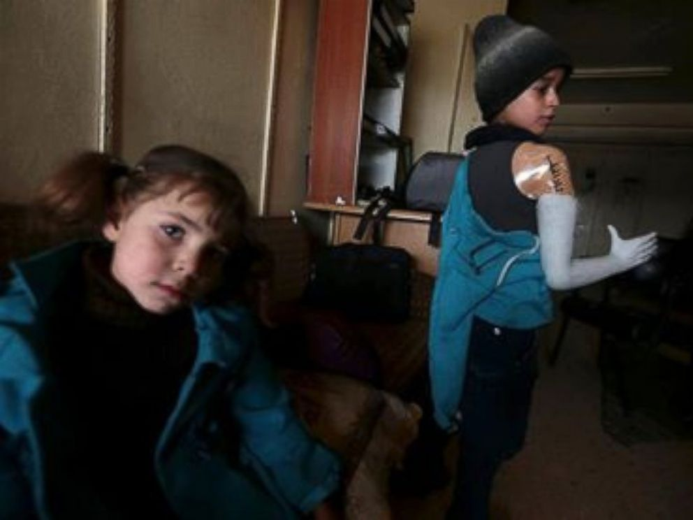 PHOTO: Omar, 13, lost his right arm. Now he wears a prosthetic made from part of a mannequin.